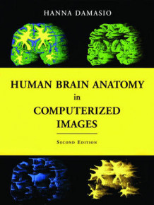 Human Brain Anatomy in Computerized Images av Hanna Damasio (Innbundet)