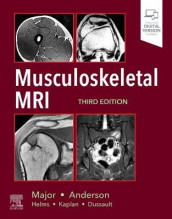 Musculoskeletal MRI av Mark W. Anderson og Nancy M. Major (Innbundet)
