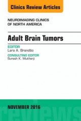 Omslag - Adult Brain Tumors, an Issue of Neuroimaging Clinics of North America