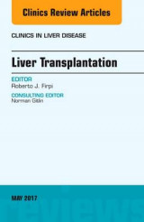 Omslag - Liver Transplantation, an Issue of Clinics in Liver Disease
