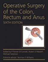 Omslag - Operative Surgery of the Colon, Rectum and Anus