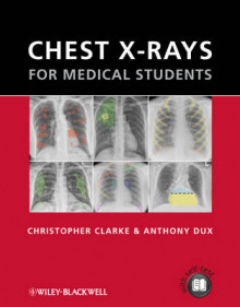 Chest X-rays for Medical Students av Christopher Clarke og Anthony Dux (Heftet)
