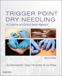 Trigger Point Dry Needling (Innbundet)