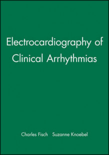 Clinical Electrocardiography of Arrhythmias av Charles Fisch og Suzanne Knoebel (Innbundet)