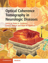 Omslag - Optical Coherence Tomography in Neurologic Diseases