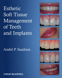 Esthetic Soft Tissue Management of Teeth and Implants av Andre P. Saadoun (Innbundet)
