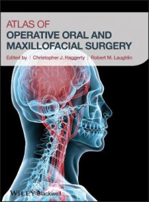 Atlas of Operative Oral and Maxillofacial Surgery (Innbundet)