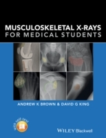 Musculoskeletal X-Rays for Medical Students and Trainees av Andrew K. Brown og David G. King (Heftet)