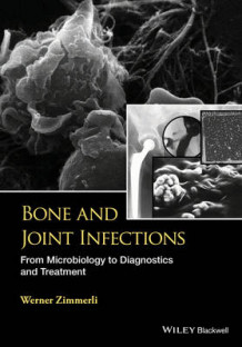 Bone and Joint Infections av W. Zimmerli (Innbundet)