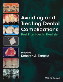 Avoiding and Treating Dental Complications (Heftet)