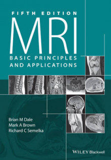 MRI av Brian M. Dale, Mark A. Brown og Richard C. Semelka (Heftet)