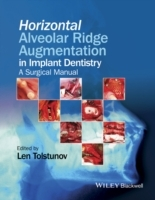 Horizontal Alveolar Ridge Augmentation in Implant Dentistry av Len Tolstunov (Innbundet)