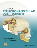 Atlas of Temporomandibular Joint Surgery (Innbundet)