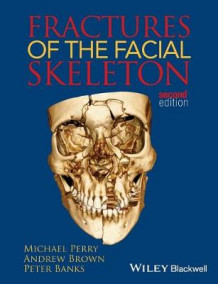 Fractures of the Facial Skeleton av Michael Perry, Andrew K. Brown og Peter Banks (Heftet)