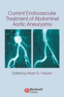 Current Endovascular Treatment of Abdominal Aortic Aneurysms (Innbundet)