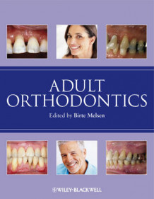 Adult Orthodontics (Innbundet)
