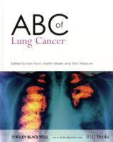 ABC of Lung Cancer (Heftet)