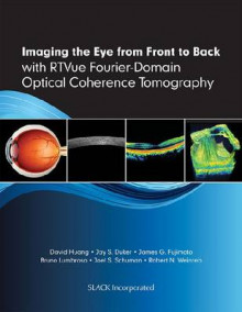 Imaging the Eye from Front to Back with RTVue Fourier-Domain Optical Coherence Tomography av David Huang, Jay S. Duker, James G. Fujimoto, Bruno Lumbroso, Joel S. Schuman og Robert N. Weinreb (Innbundet)