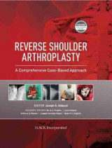 Omslag - Reverse Shoulder Arthroplasty