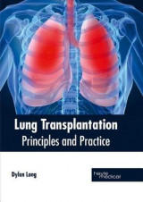 Omslag - Lung Transplantation