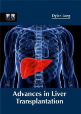 Omslag - Advances in Liver Transplantation