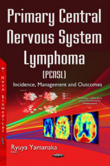 Omslag - Primary Central Nervous System Lymphoma (Pcnsl)