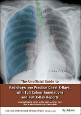 Omslag - The Unofficial Guide to Radiology: 100 Practice Chest X Rays with Full Colour Annotations and Full X Ray Reports 2017