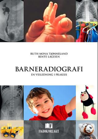 Bilde av Barneradiografi