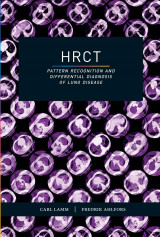 Omslag - HRCT- Pattern Recognition and Differential Diagnosis of Lung Disease