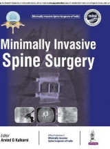 Omslag - Minimally Invasive Spine Surgery