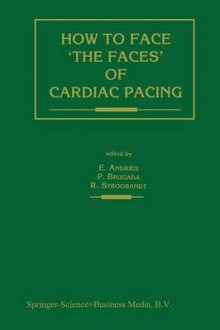 How to face `the faces' of CARDIAC PACING av Erik Andries, Pedro Brugada og Roland X. Stroobandt (Heftet)